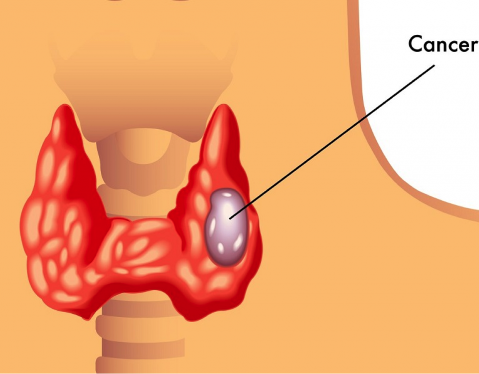 drc-thyroid-cancer