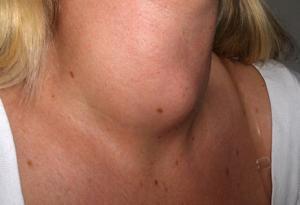 drc-lump-in-throat