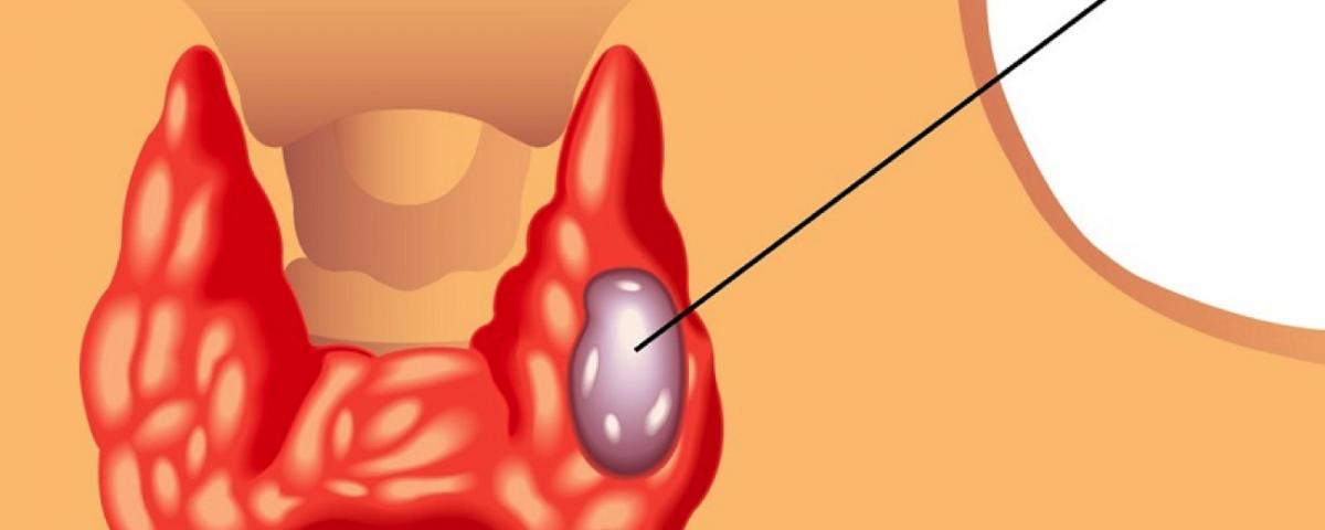drc-thyroid-cancer