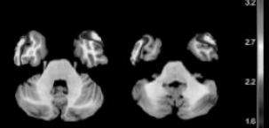 brain-scan-2